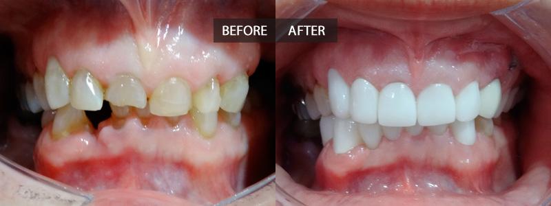 Implant Restored