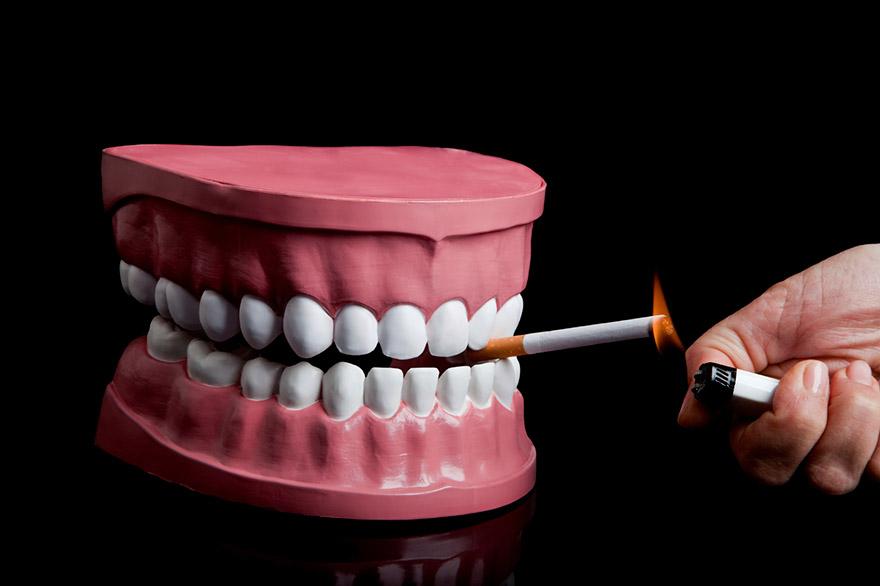 Dental Implants and Smoking