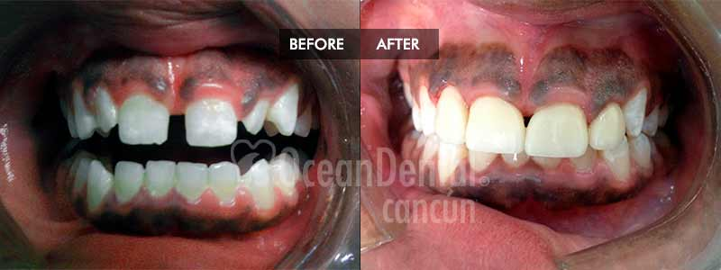 before and after of treatment dental crowns