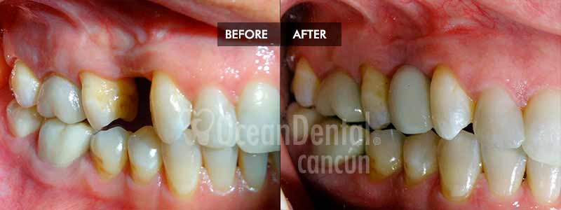 before and after of treatment dental implants