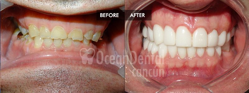 before and after of treatment full mouth restoration mexico