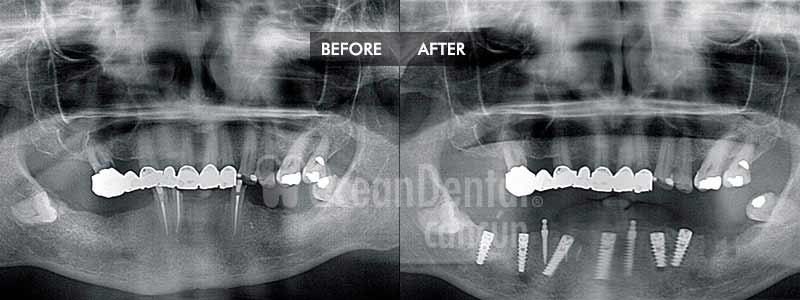 before and after of treatment mini implants in mexico