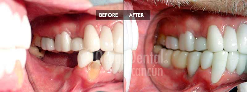 before and after of treatment multiple dental implants