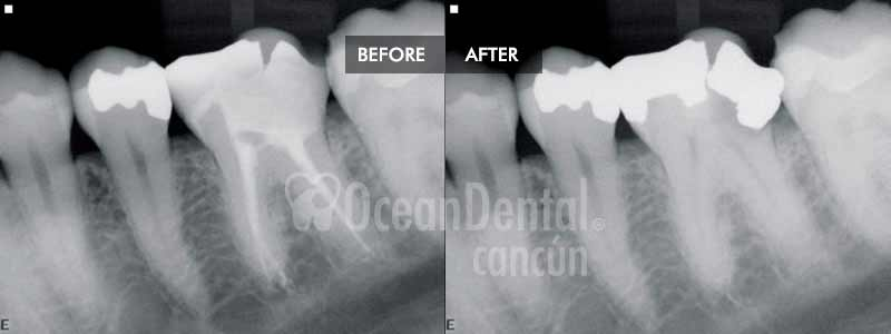 before and after of treatment root canal