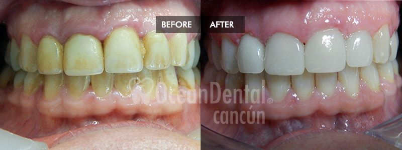 before and after of treatment smile makeover in mexico