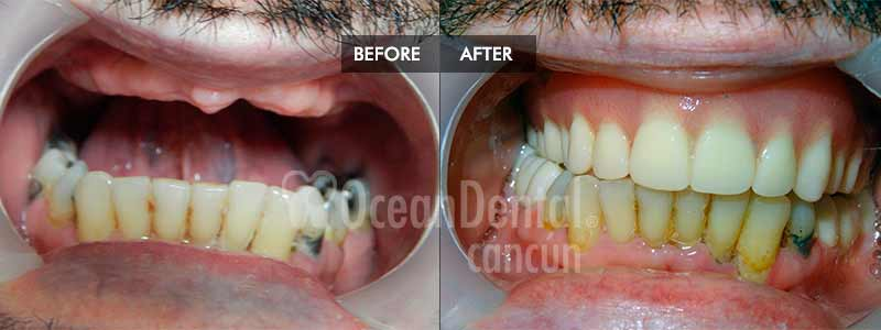 before and after of treatment snap on dentures in mexico