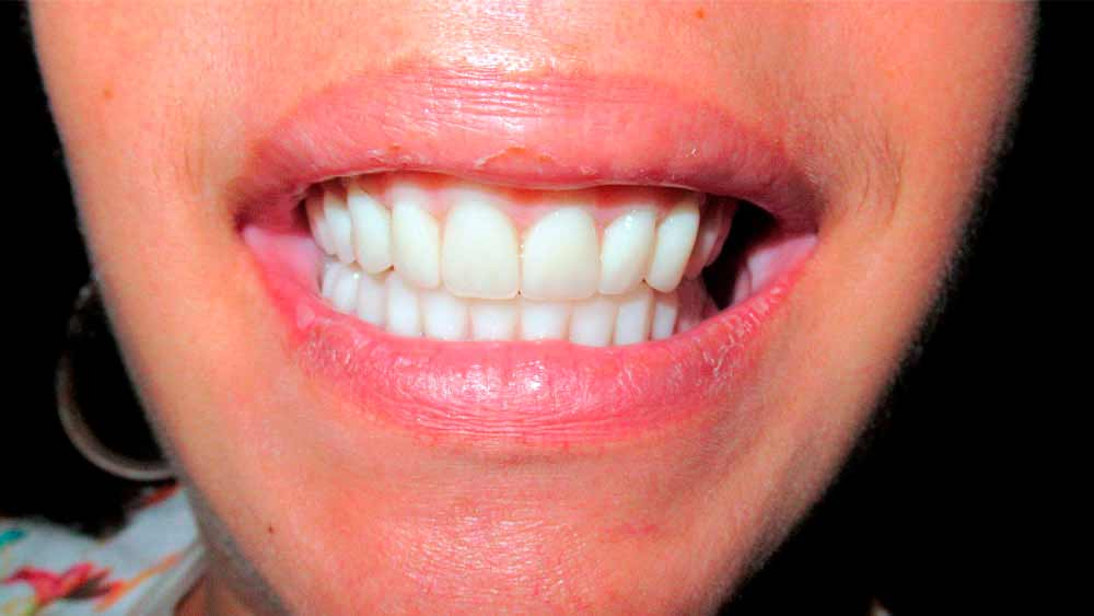 after of treatment Fixed Hybrid Dentures in mexico