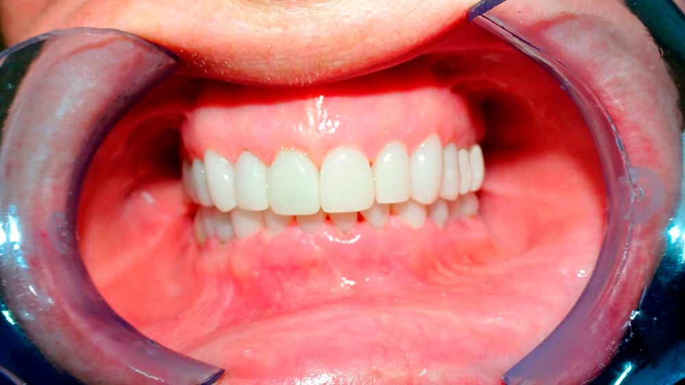 after of treatment full mouth restoration