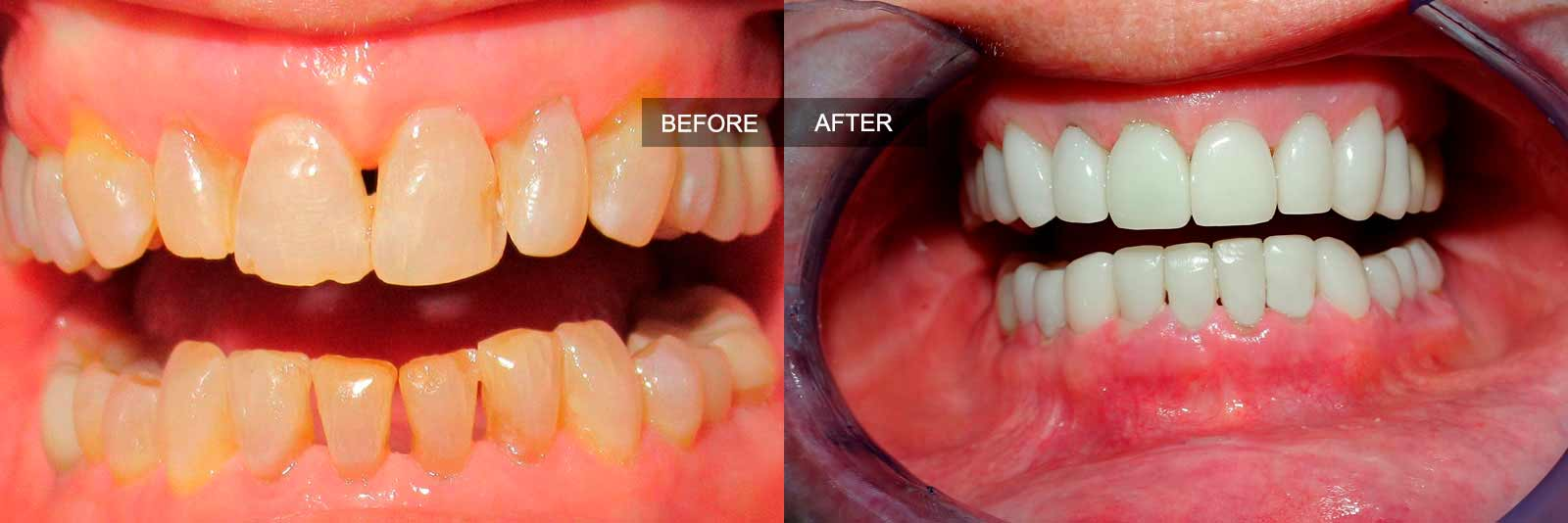 before and after of treatment full mouth restoration