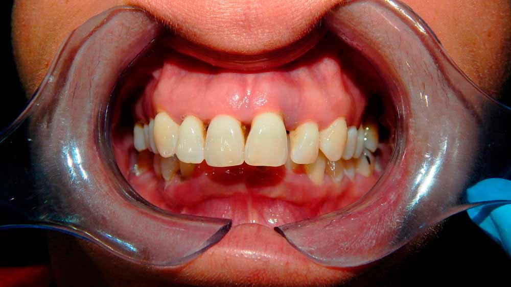 before of treatment Fixed Hybrid Dentures in mexico