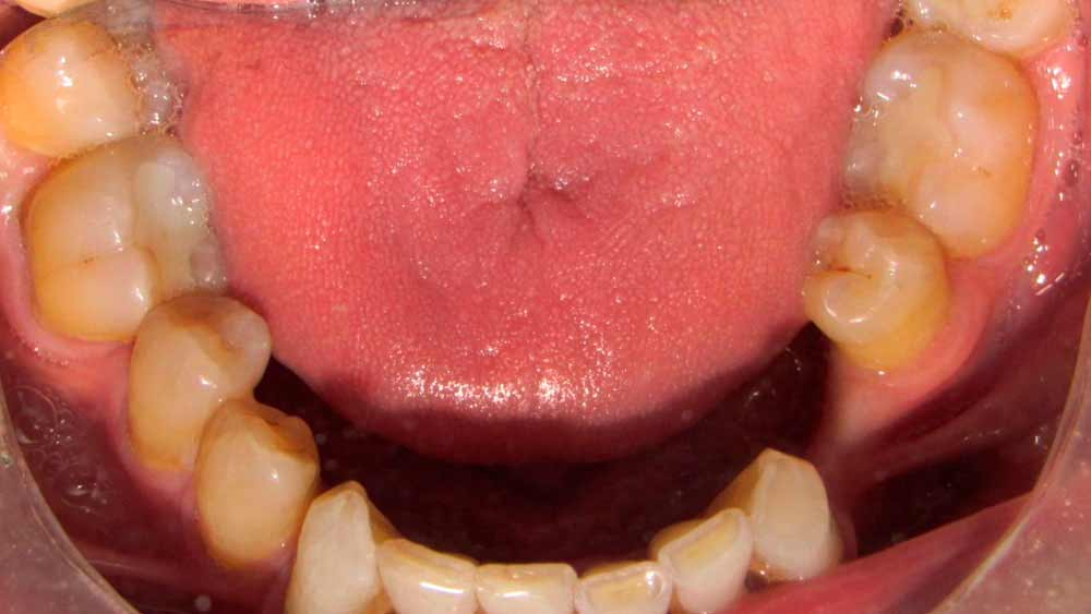 before of treatment full mouth restouration in mexico