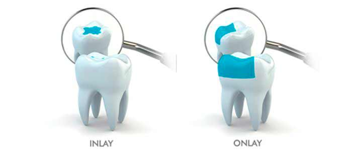 ocean dental cancun in treatments