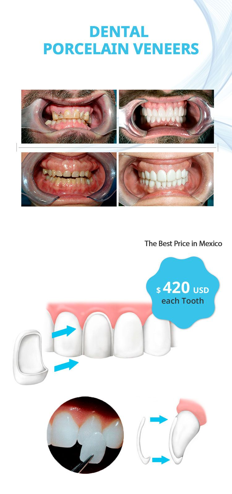 price porcelain dental veneers