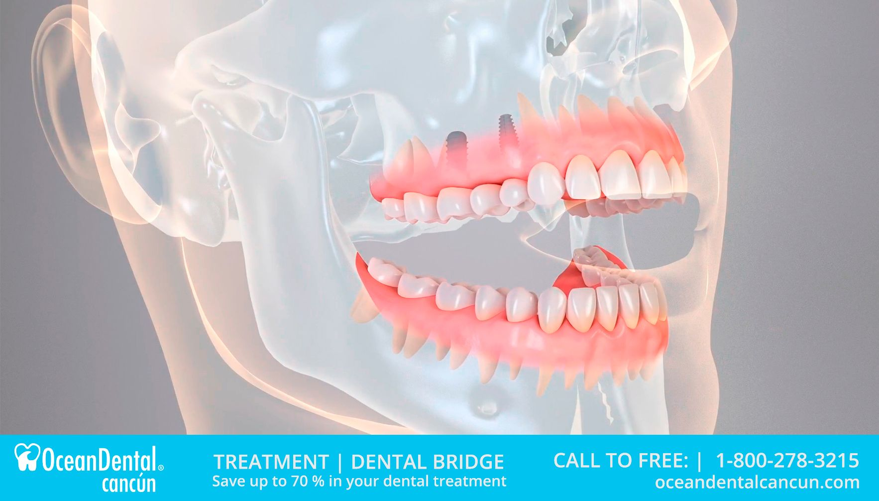 dental bridge in cancun