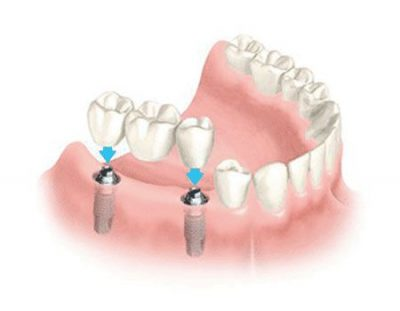 dental bridge fixed