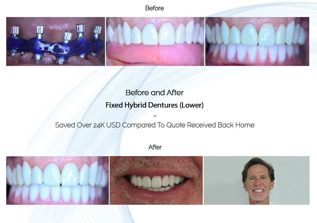 fixed hybrid dentures before and after