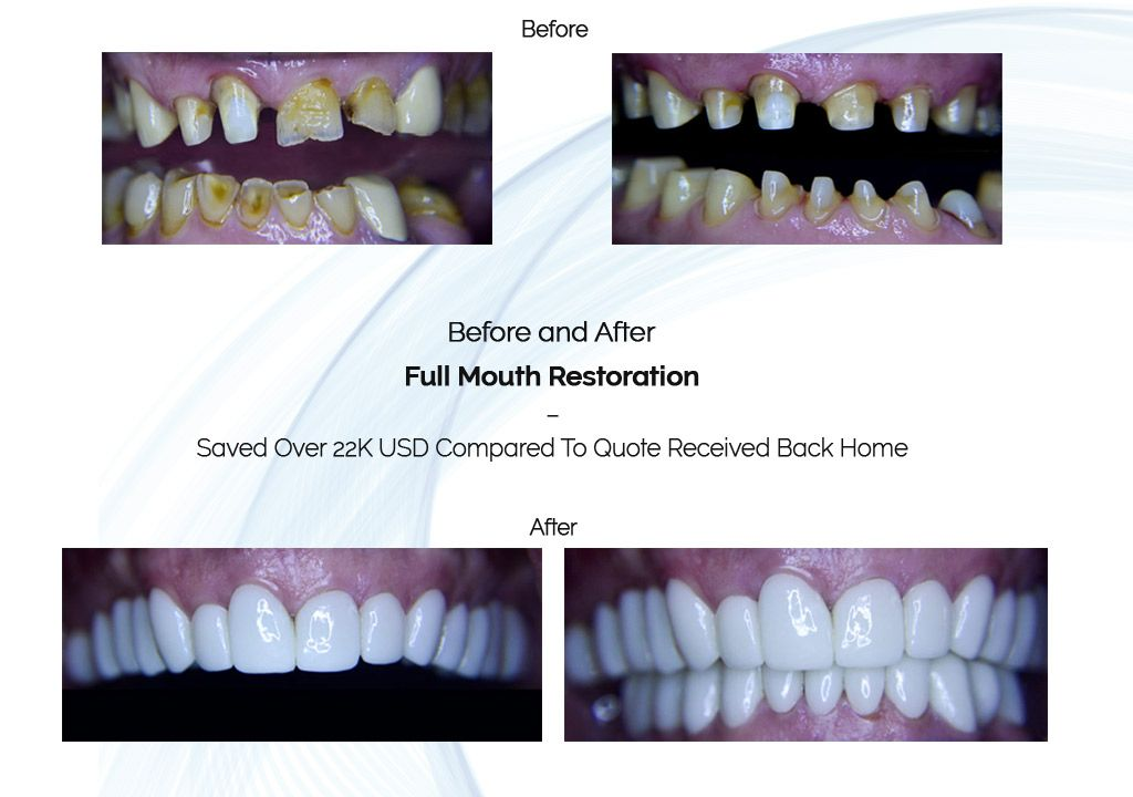 full mouth restoration before and after
