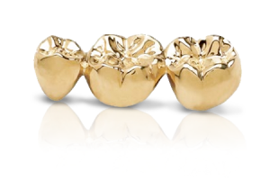 metal gold crowns