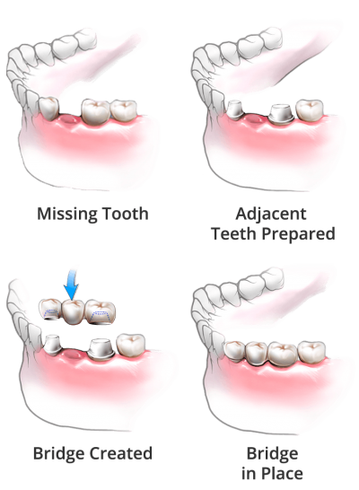 procedures of dental bridge