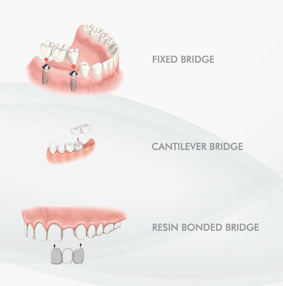 types of dental bridge