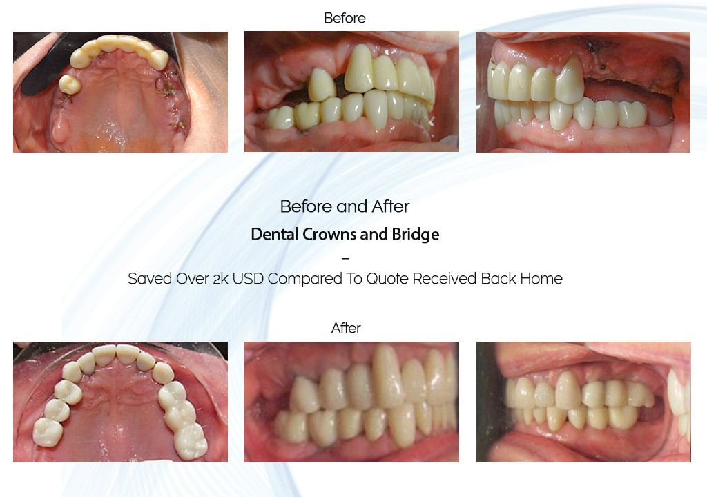 dental bridge before and after in ocean dental cancun