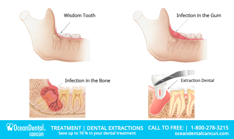 extraction dental cancun