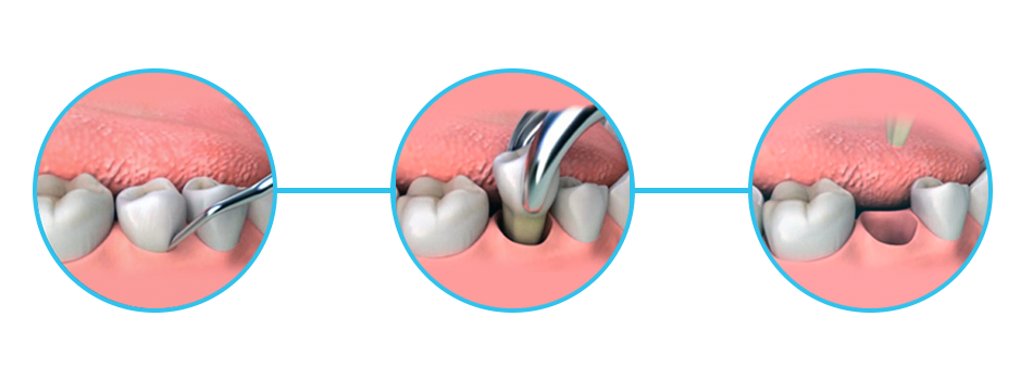 dental extraction cancun