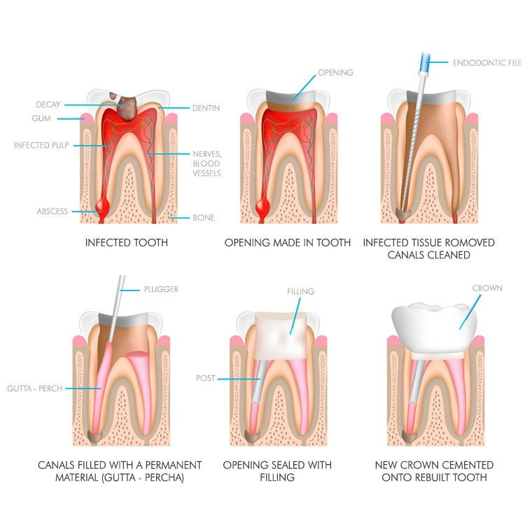 Root Canal Therapy in cancun