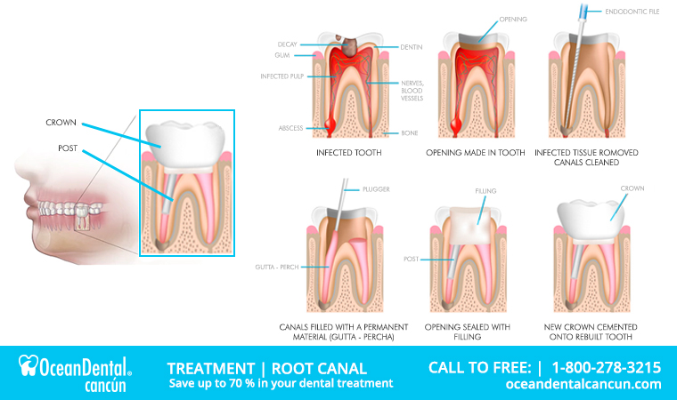 root canal treatments in mexico