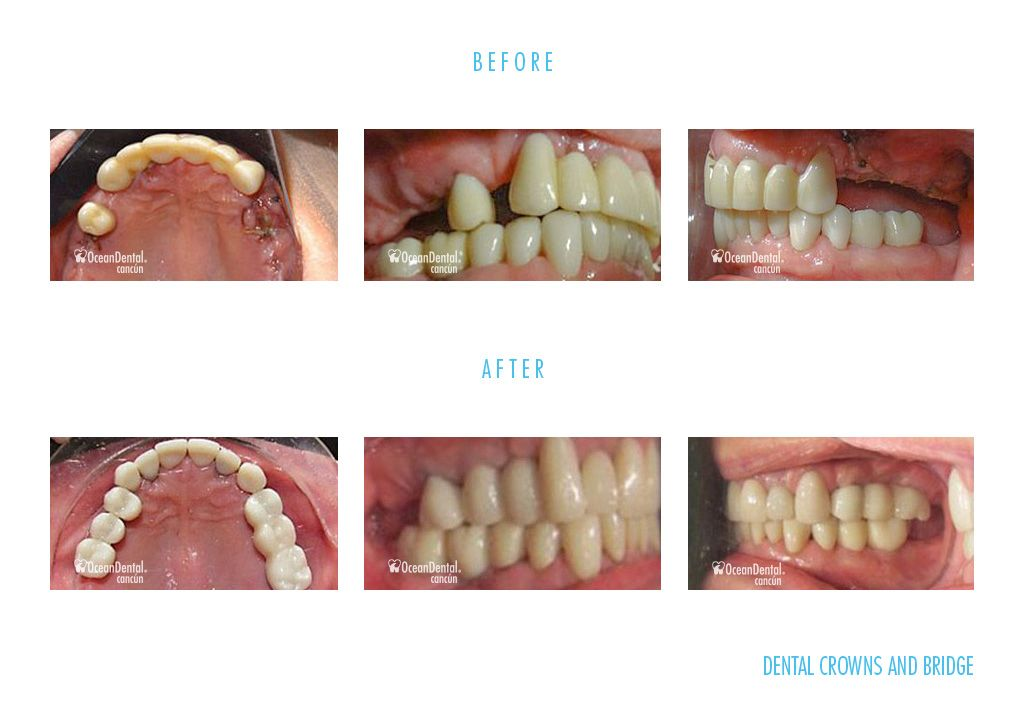 dental crowns and bridge before and after