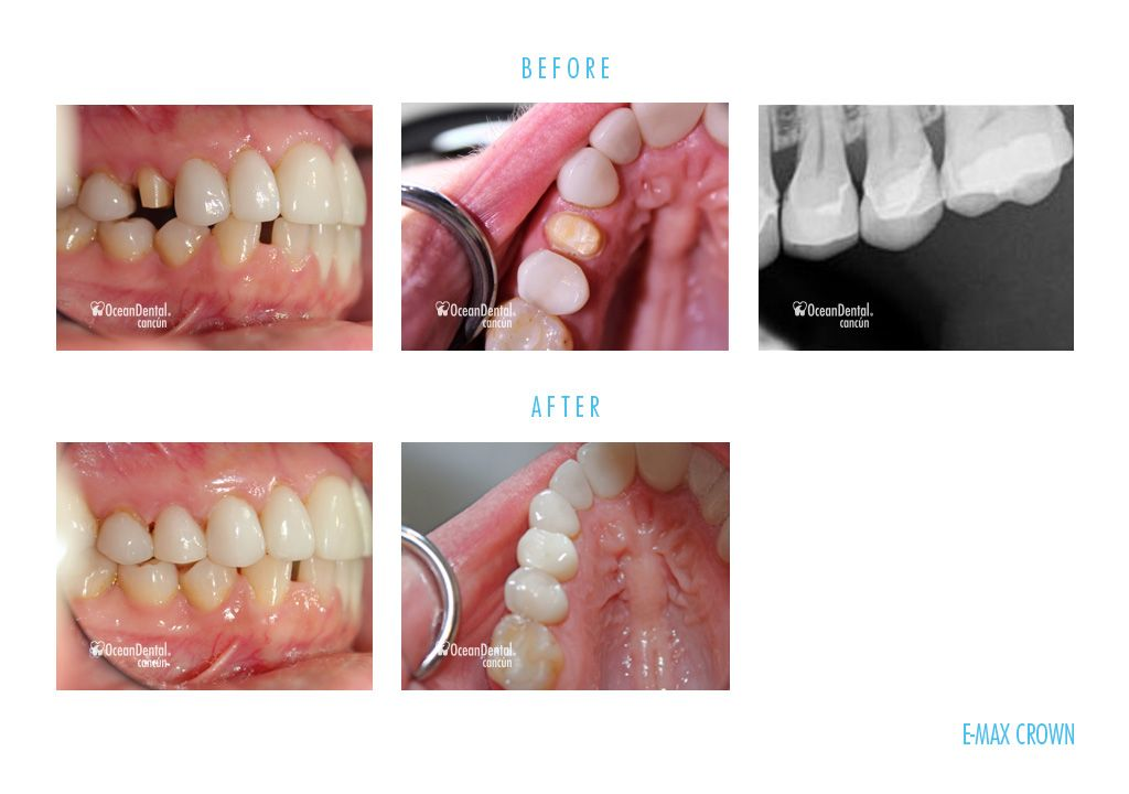 before and after dental e-max crown