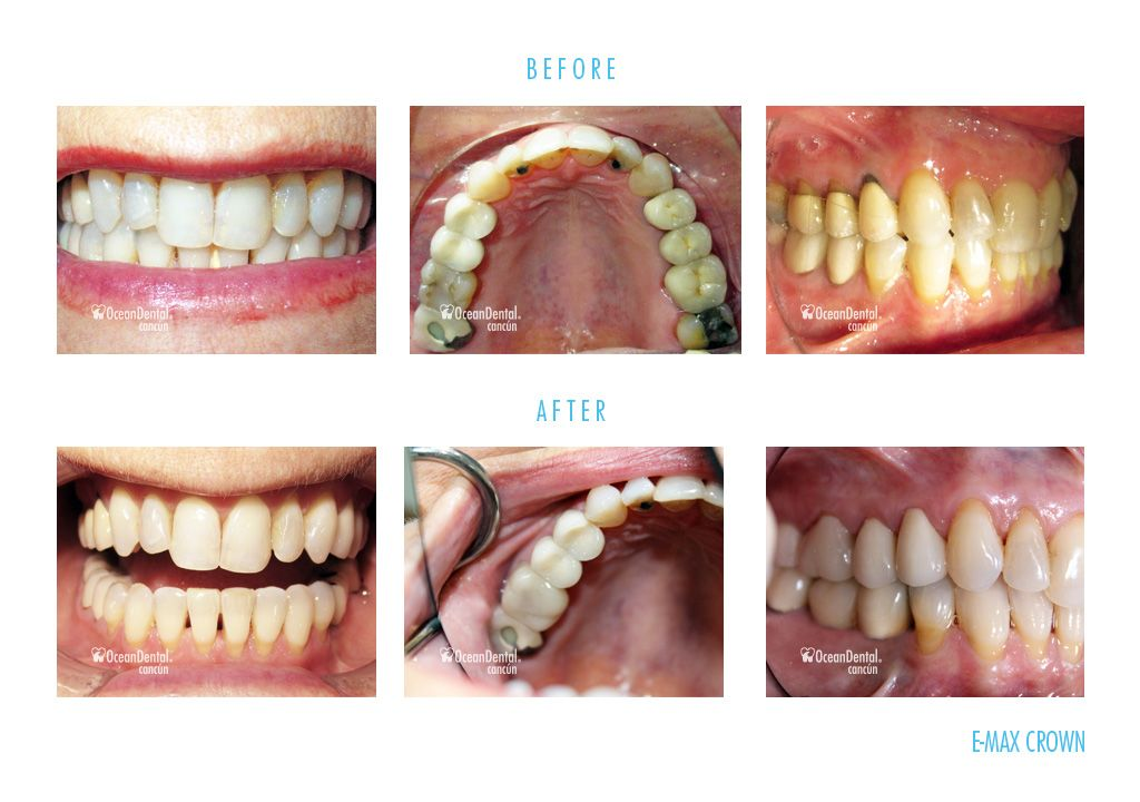 before and after dental e-max crowns