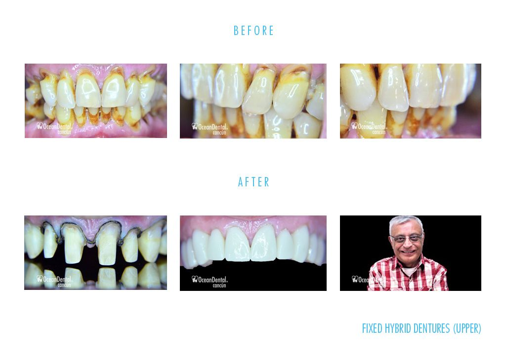 dental fixed hybrid dentures before and after