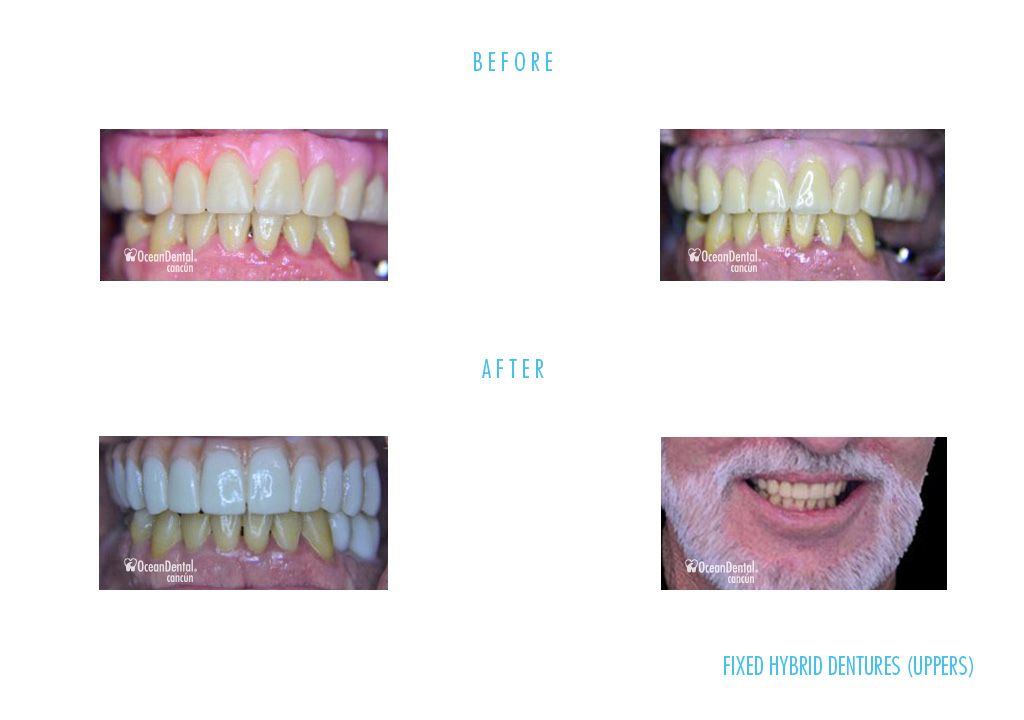 dental fixed hybrid dentures uppers before and after