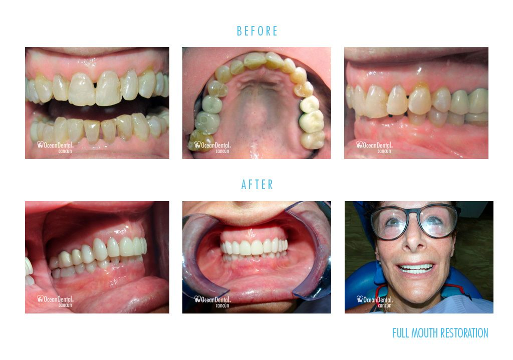 dental full mouth restoration before and after