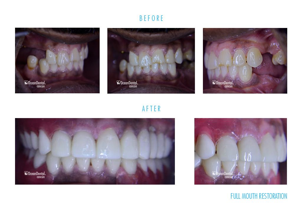 before and after dental full restoration