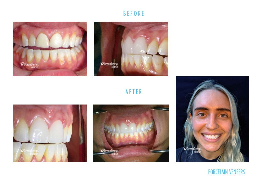 before and after dental porcelain veneers