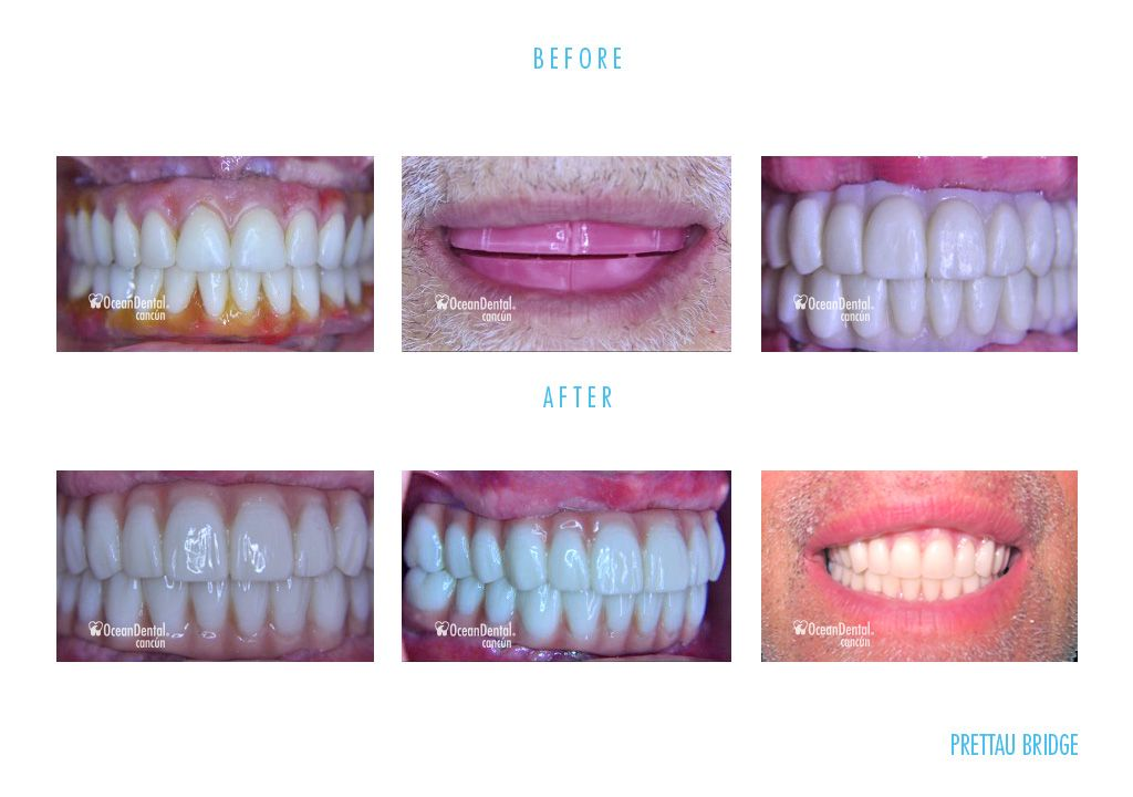 before and after dental prettau bridge