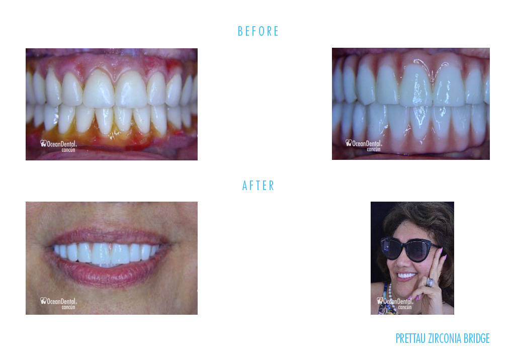 before and after dental prettau zirconia bridge