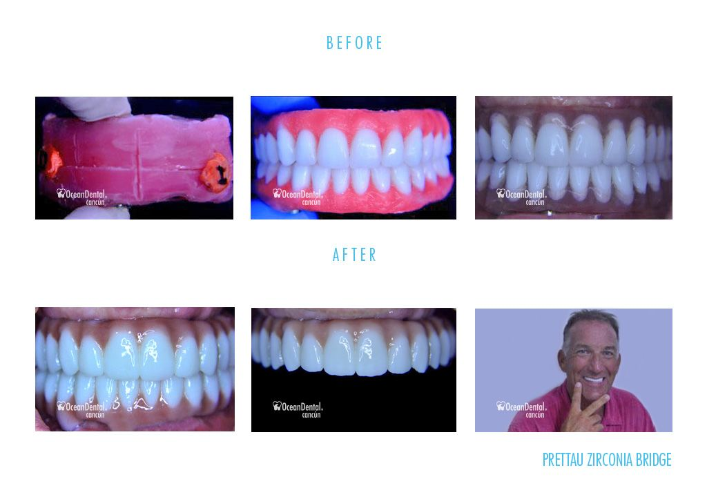 before and after prettau zirconia bridge