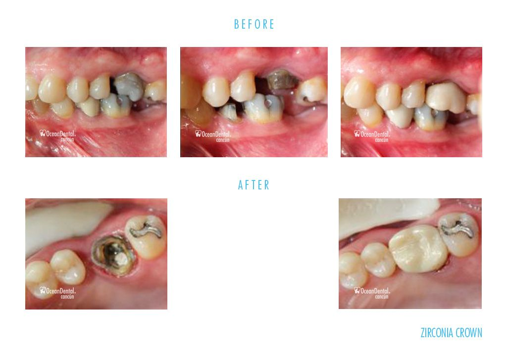 before and after dental zirconia crowns