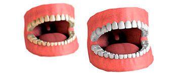 ocean dental cancun in treatments